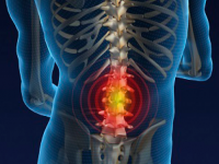 Evidence based care for lower back pain in primary setting